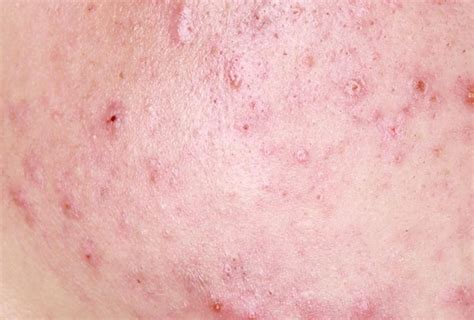 rimedi naturali macchie post brufoli e acne youtube pin cicatrici da acne giovanile ho avuto una violenta on