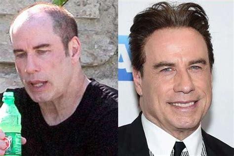 hair plug versus transplant celebrity 10 celebrities who have had hair transplants