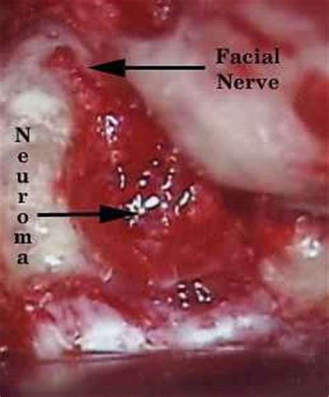 best acoustic neuroma surgeons acoustic neuroma