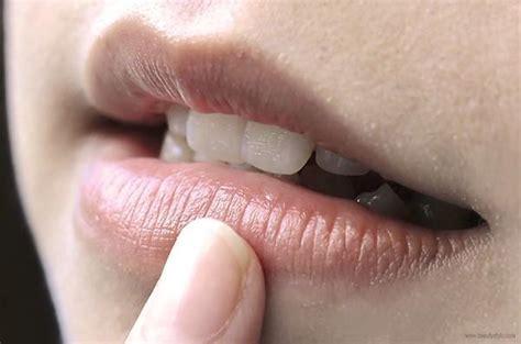Pelembab Bibir Alami 10 cara mengatasi bibir hitam dan kering secara alami