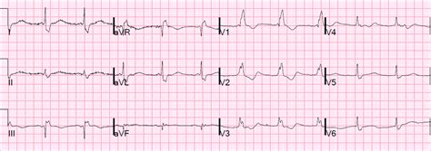 st on left or right dr smith s ecg blog pseudostemi and true st elevation in