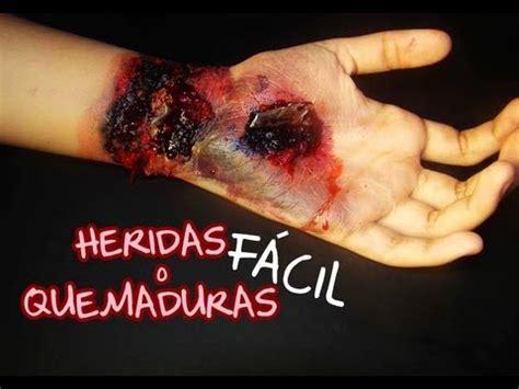 imagenes de heridas para halloween heridas o quemaduras 161 f 193 cil youtube