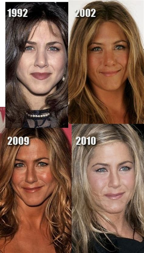 Aniston Second Nose For More Baby by Nose Aniston Nose Before And