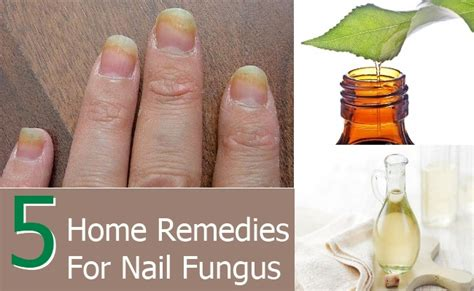 foot fungus home remedy pictures home decor ideas