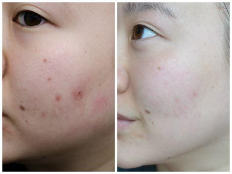Toner Spl Skincare Acne Light led light photomodulation therapy premier clinic