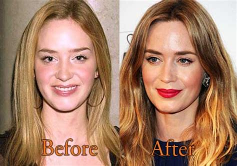 jessica robertson surgery top celebrity surgery page 4 of 25 celebrity plastic