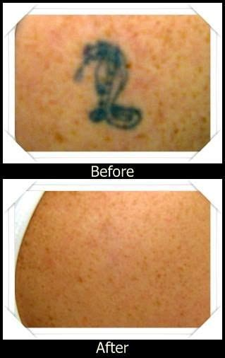average cost of tattoo removal treatment 40 best laser removal images on laser