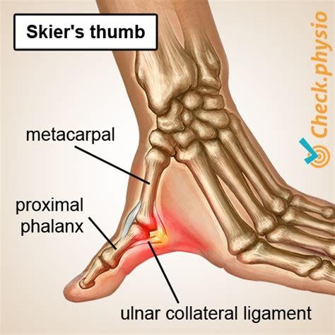 keepers thumb skier s thumb physio check