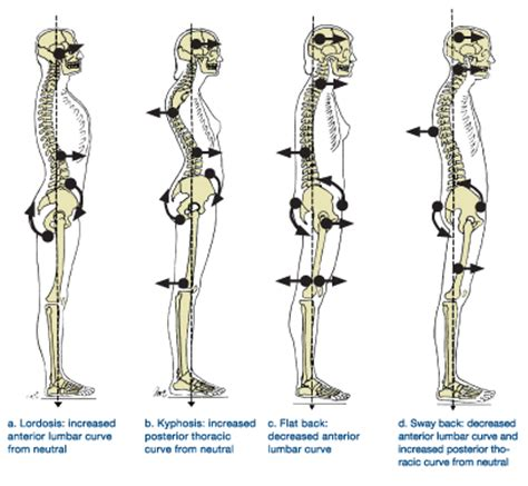 2842214420 yoga anatomie les postures naughty knees in alignment