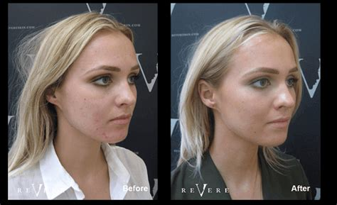 acne laser treatment the laser treatment clinic london laser acne scar treatment london