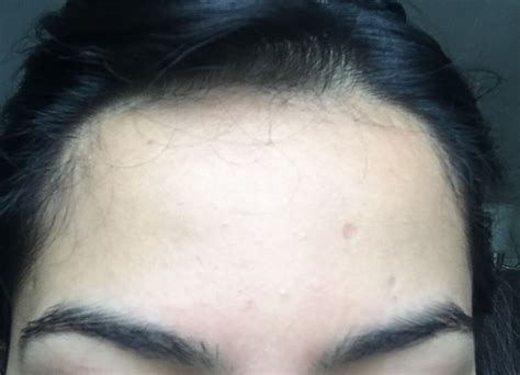 large bump on hairline near right temple general health how can i get rid of tiny bumps covering my face