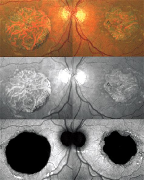 pattern dystrophy differential diagnosis how to spot diseases that mimic dry amd