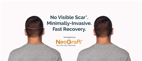 neograft doctors find the best neograft doctors top 5 reasons men choose hair transplant surgery with neograft