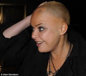 hair styles for with alopecia gail porter winning the battle against alopecia as hair