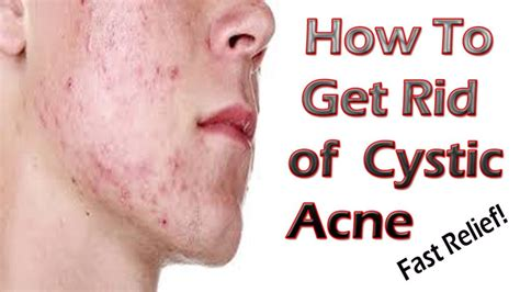 25 diy home remedies for cystic acne healthy food style