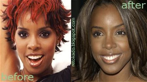 kelly rowland s nose job filipino celebrity plastic