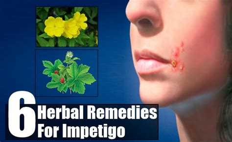 top 6 herbal remedies for impetigo how to treat impetigo