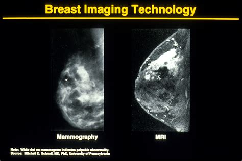 mammogram images mammography mammography images of breast cancer