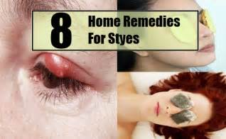 home remedies for stye 8 styes home remedies treatments cures search