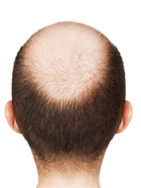 shaved head to hide graying hair ask the good enough guy i m not attracted to my balding