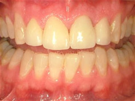 traverse city porcelain veneers smile gallery before and after dental photos smile