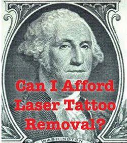 tattoo removal redding ca redding laser removal