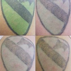 tattoo removal fort worth vanish laser tattoo removal and skin aesthetics tattoo