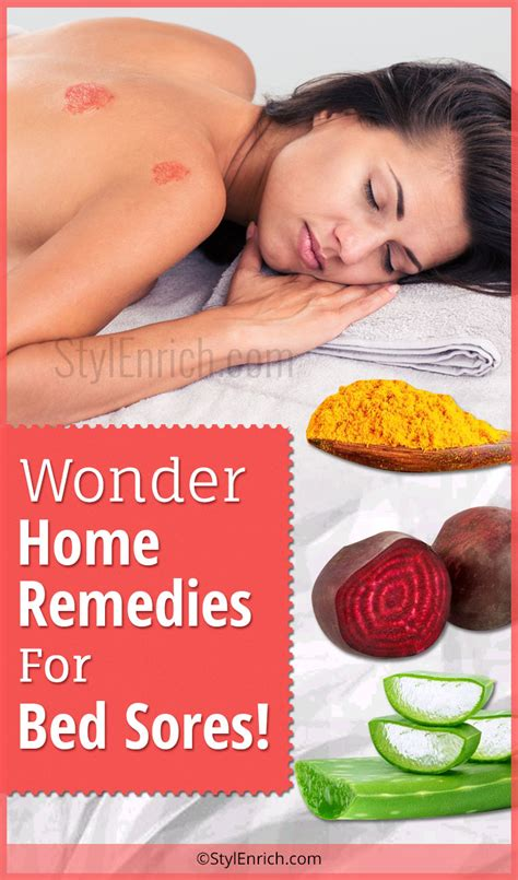 treatment for bed sores on buttocks home remedies for bed sores wonder treatments