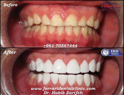 top 28 cost veneer tooth veneers cost dental veneers