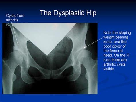 hip dysplasia surgery hip dysplasia hip joint surgery