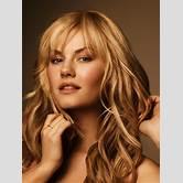 celebrity-hair-transplant