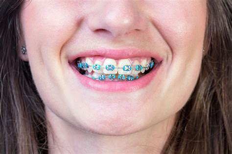 braces colors that make teeth whiter what colour braces make your teeth look whiter evolution