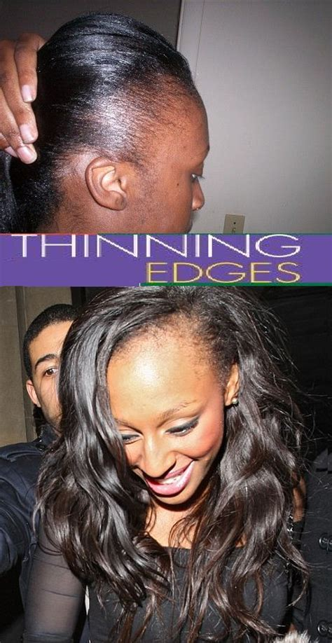 how to regrow african american temple hair 10 best hair regrow for receding hairline images on
