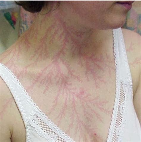 lightning tattoo scar lichtenberg figures scars left by a lightning strike