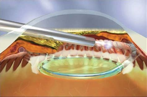 diode laser cycloablation optician