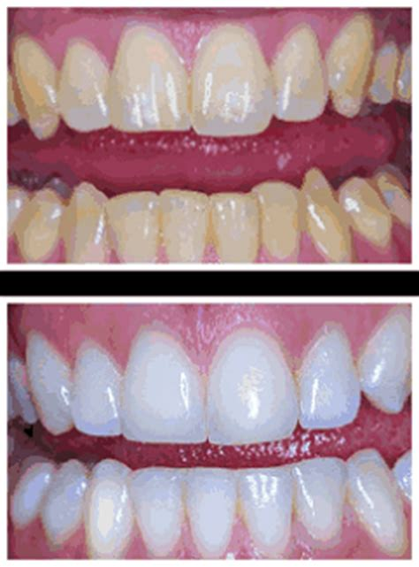 best tooth whitening product best teeth whitening products best teeth whiteners