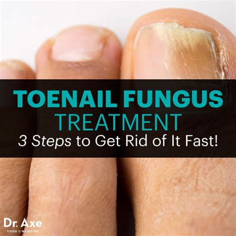 best treatment for foot fungus toenail fungus treatment 3 steps to get rid of it fast