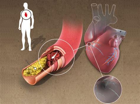 infiammazione vasi sanguigni infarto cos 232 le possibili cause come riconoscere
