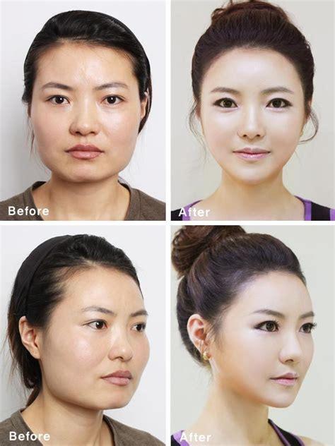 Asian Plastic Surgery Meme - south korean plastic surgery craze blamed for creating
