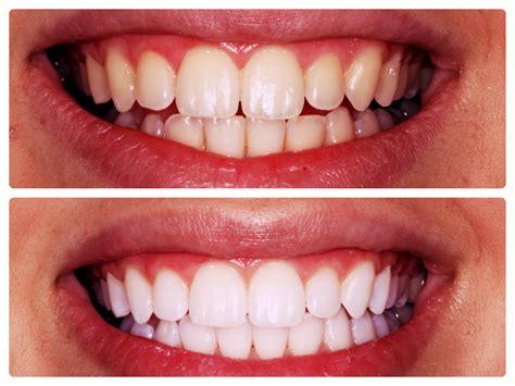 beverly hills prestige dental group   state