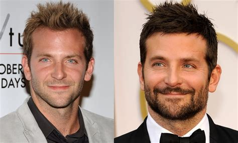 hair plug versus transplant celebrity which hollywood guys have had plugs hair systems plz post