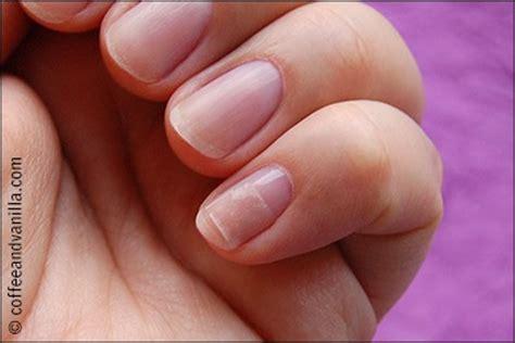 broken nail bed how to fix a broken nail trusper