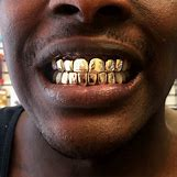 Gold Teeth Grillz | 1000 x 1000 png 435kB