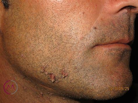 imagenes verrugas vulgares genitales tratamiento para eliminar las verrugas del papiloma econom
