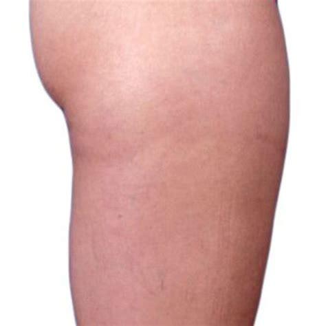 contour light body sculpting before and after venus versa multi treatment system venus concept