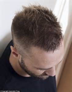 hairs hairline calum best undergoes a second 163 6 000 hair transplant in