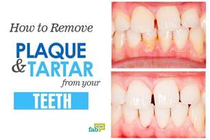 how to remove tartar from teeth at home how to remove plaque and tartar from your teeth fab how
