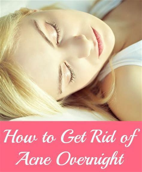 how to get rid of acne overnight fast at home tips and