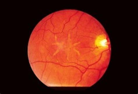 pattern dystrophy eog retina pt 2 ch 8 11 flashcards quizlet