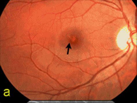 diode laser eye damage irreversible vision damage don t turn a blind eye to laser hazards laser pointer forums